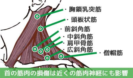 首の筋肉の損傷は近くの筋肉神経にも影響